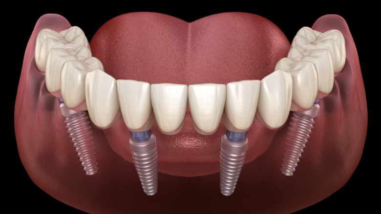 Forschungsprojekt zur Lebensdauer von Zahnimplantaten